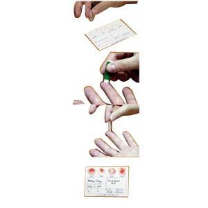 Smith Medical Line Draw Plus Blood Test Kit w/Luer Lock Syringe & Filter Pro Device 3ml